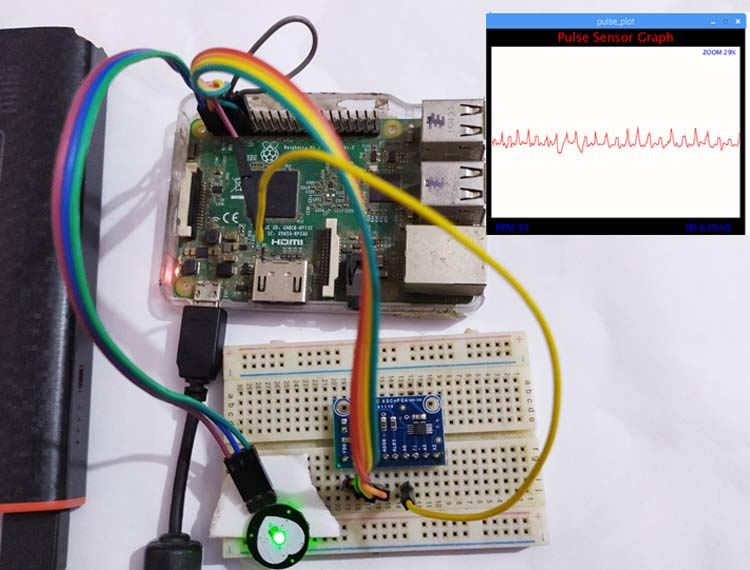 IoT Based Heartbeat Monitoring System using Raspberry Pi